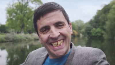 In numele selfie-ului, du-te la dentist