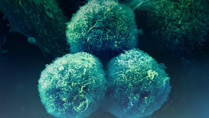 35% dintre respondenții la un test online prezintă factori ce pot indica riscul de a dezvolta cancer pulmonar