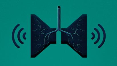 Cancerul pulmonar devine tot mai invizibil în contextul pandemiei de COVID-19- un număr semnificativ de cazuri rămân nediagnosticate